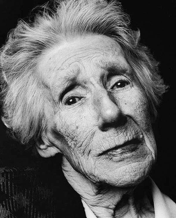 Foto: donna affetta da Alzheimer