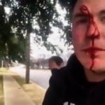 Sostenitore per la vita brutalmente aggredito fuori da una struttura per aborti (video)