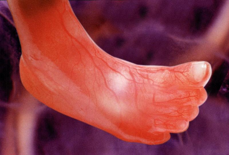 Piede del bambino dopo 12 settimane dal concepimento