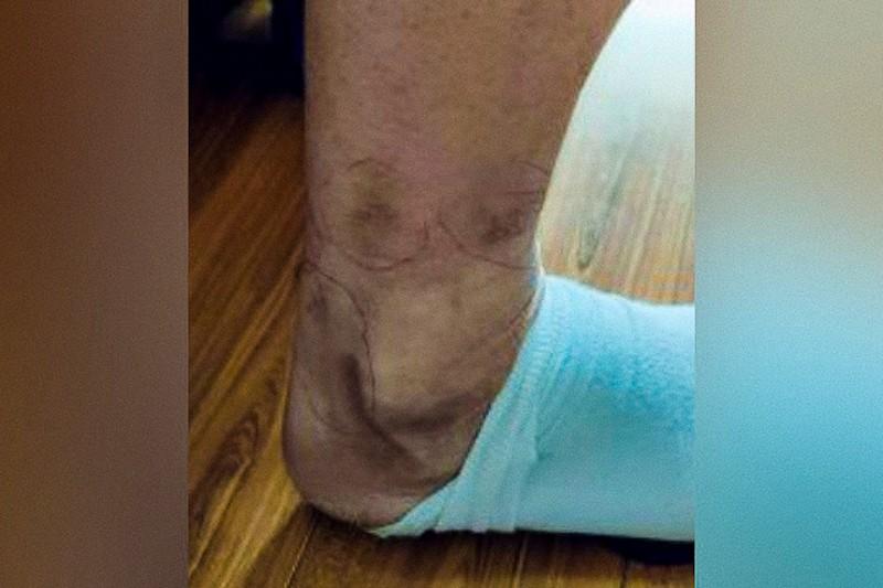 Ferite sul corpo di Zhao lasciate dalla tortura con i bastoni elettrici (foto fornita da un informatore interno)
