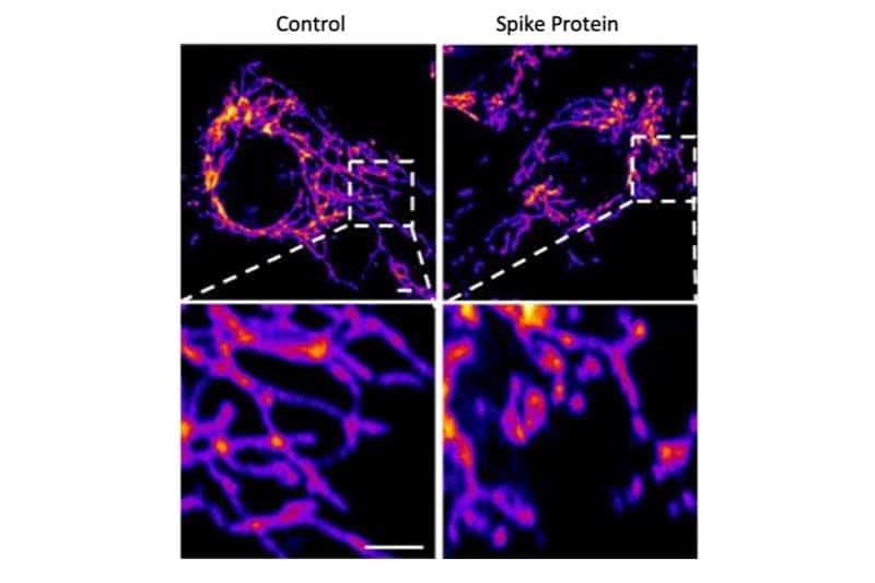 Immagini rappresentative di cellule di controllo endoteliali vascolari (a sinistra) e di cellule trattate con la proteina SARS-CoV-2 Spike (a destra) mostrano che la proteina Spike causa un aumento della frammentazione mitocondriale nelle cellule vascolari.